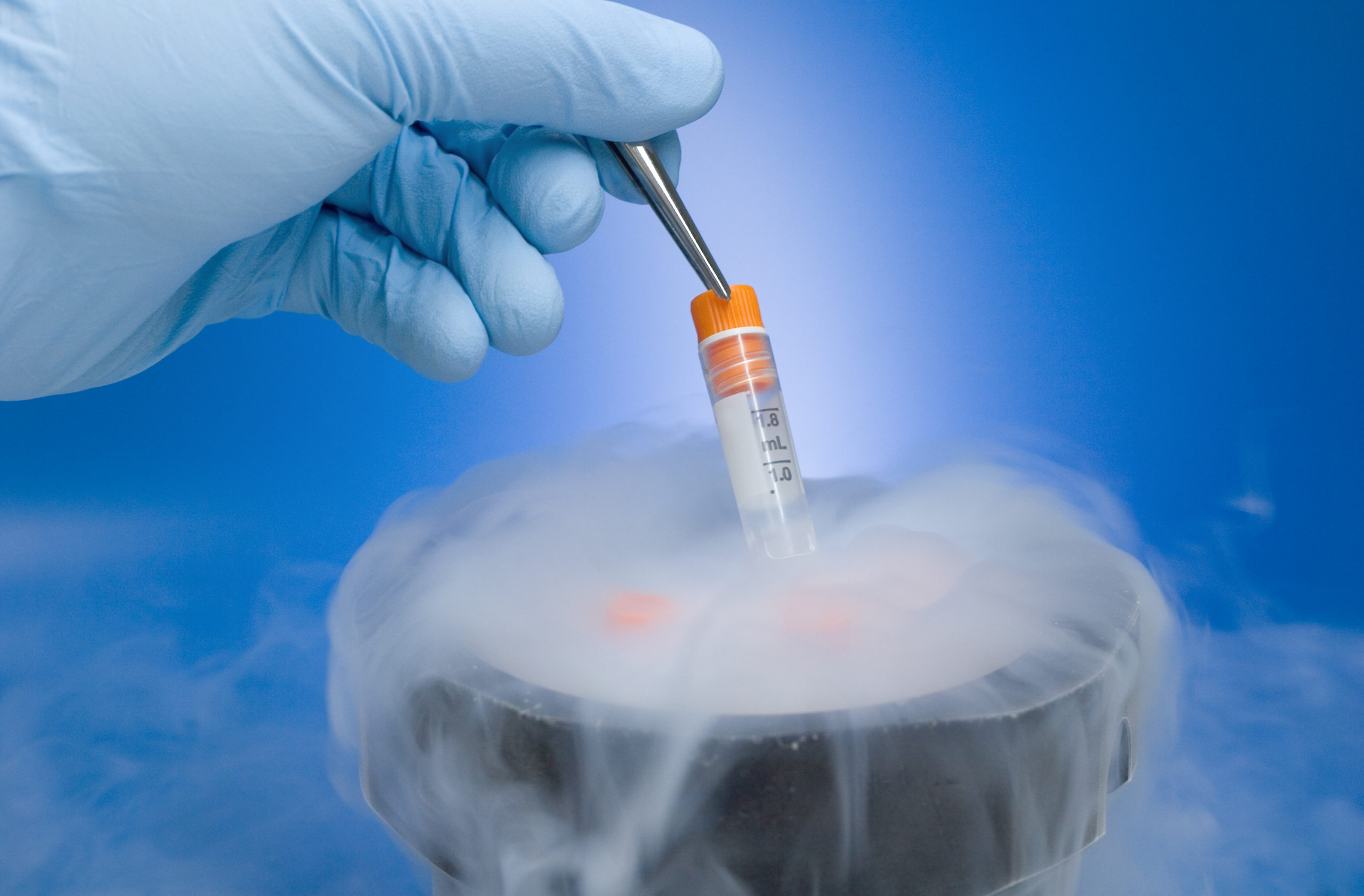 Kryokonservierung Cryopreservation Neurofibromatose